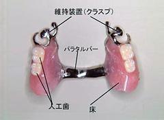 局部床義歯